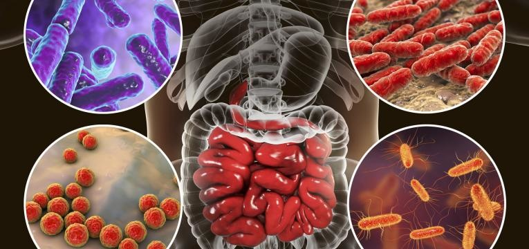doenca de Crohn virus e bacterias intestinais