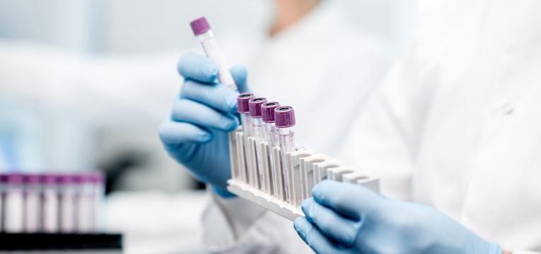 exames que requerem jejum exames laboratorio