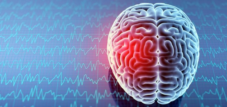 aneurisma cerebral local
