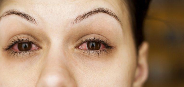 conjuntivite olhos vermelhos