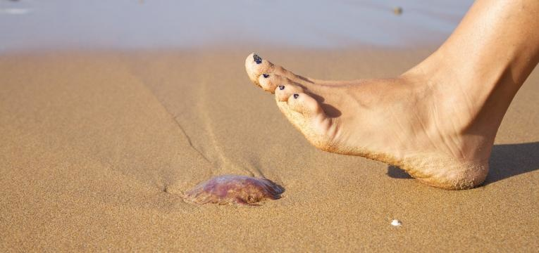 picada de alforreca cuidado com alforreca na praia
