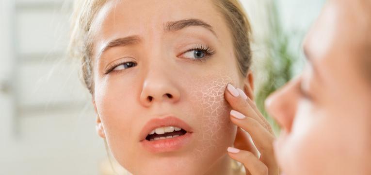 pele desidratada mulher com pele seca