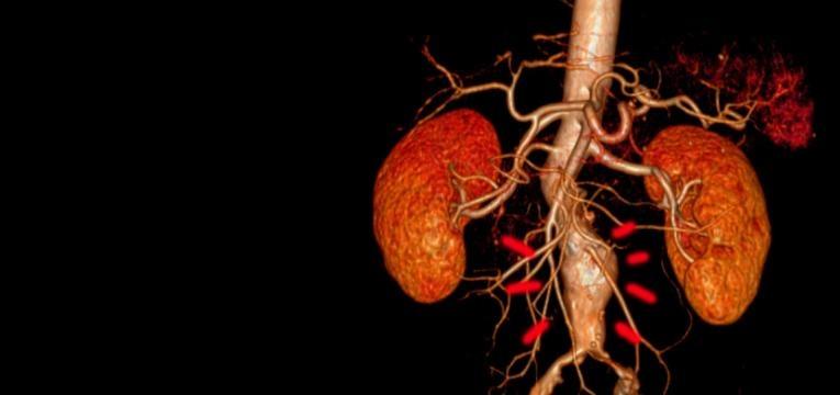 aneurisma da aorta coracao