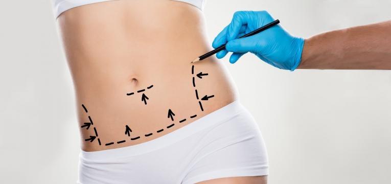 excesso de gordura abdominal abdominoplastia