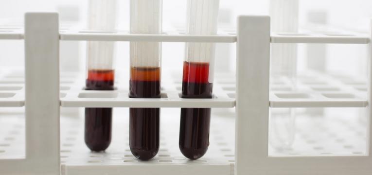 analises ao sangue