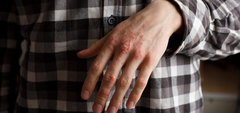 psoriase eritrodermica manifestacoes