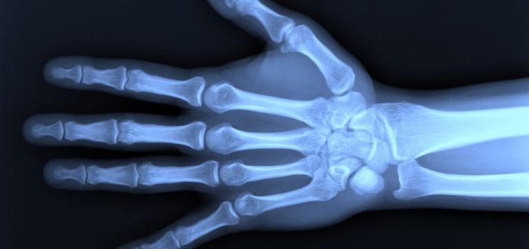 fosforo e ossos saudaveis