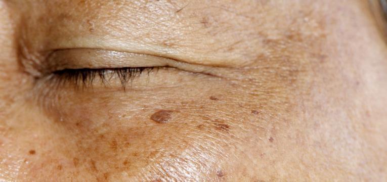 pele envelhecida