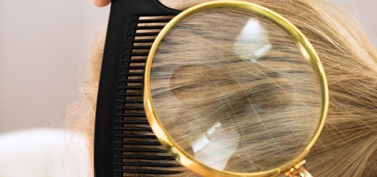 diagnostico do couro cabeludo
