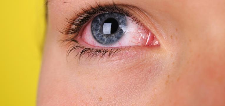 olho e vista cansada