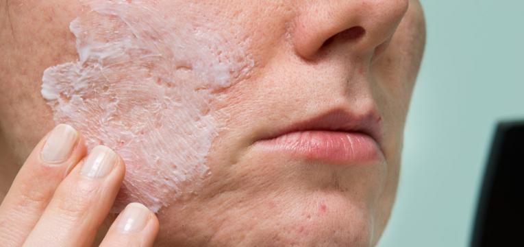 como atenuar as marcas da acne