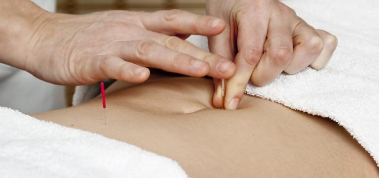 acupuntura e neuropatia