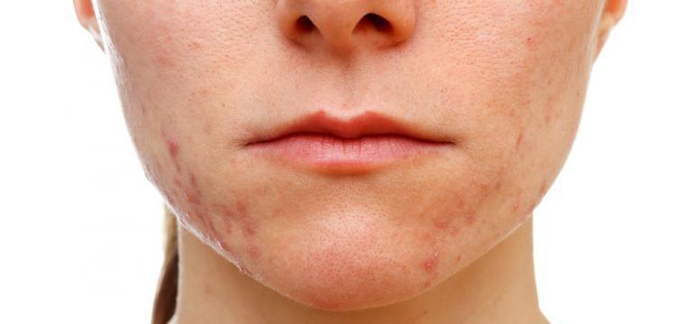 problemas de pele e acne