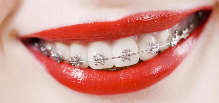 aparelho ortodôntico e diastema dentário