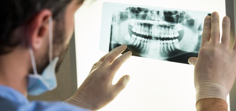cirurgia de implantes dentários