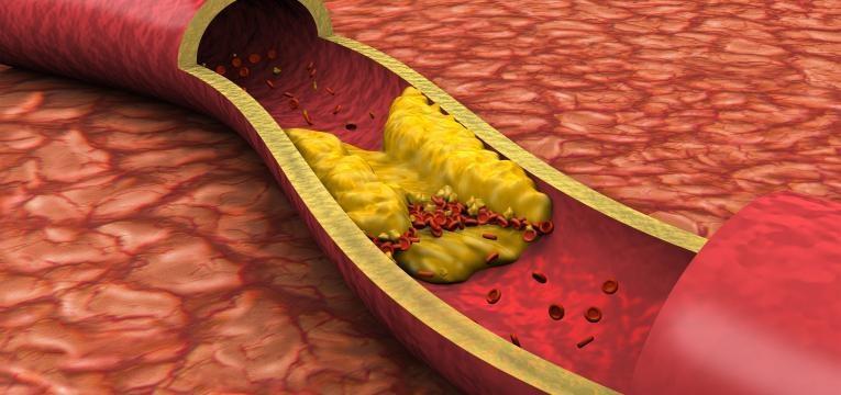colesterol sanguineo