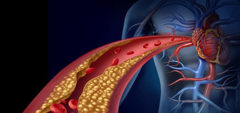 colesterol aumentado