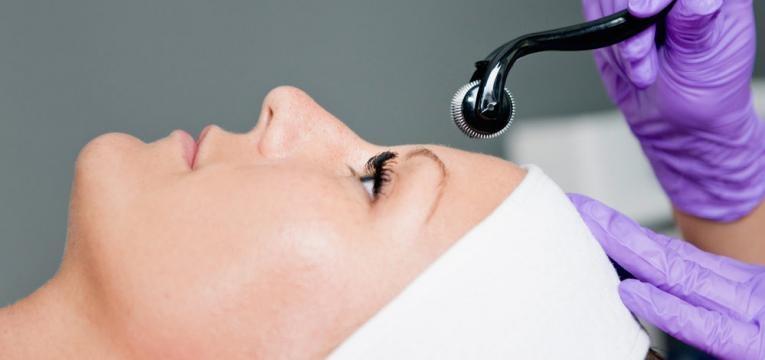 microneedling e tratamentos para combater a flacidez