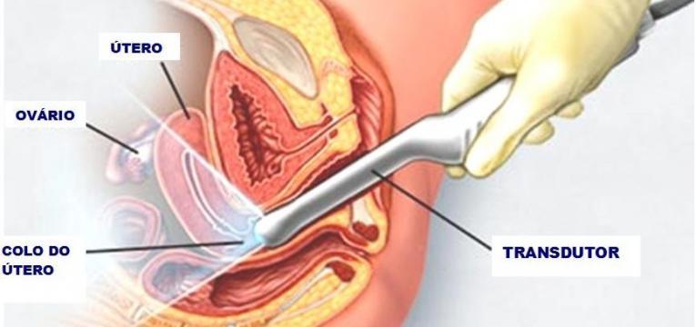 ultrassom endovaginal e teste de fertilidade