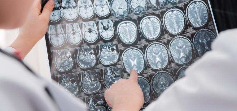 estrutura do cerebro
