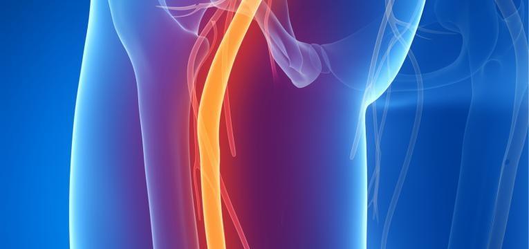 dor ciatica causas
