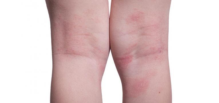 manchas na pele das pernas