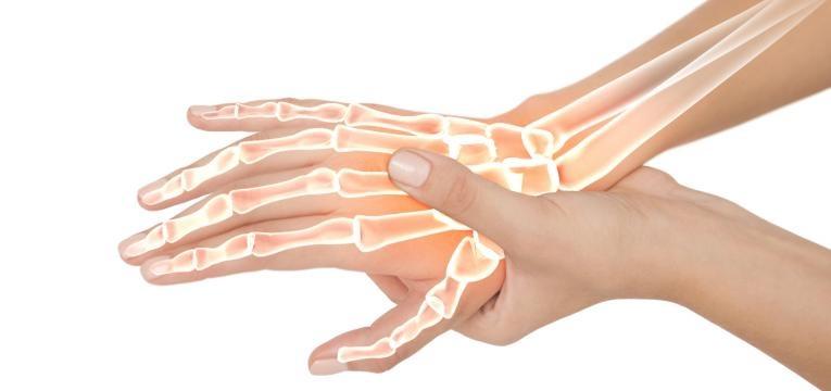 pole dance e beneficio para os ossos e articulacoes
