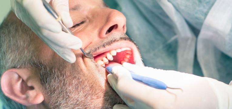 dentista e tartaro
