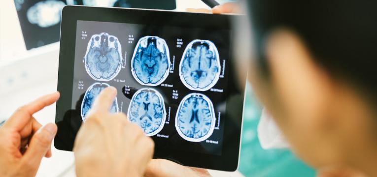 melhoria da funcao cerebral
