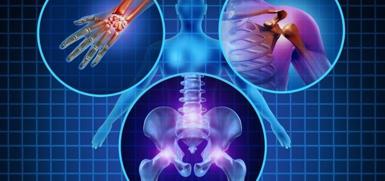 artrite causas