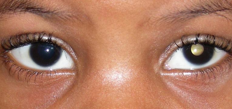 tipos de retinoblastoma