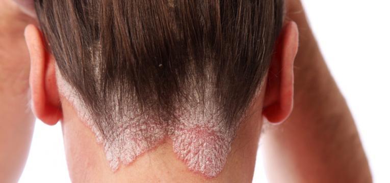 Psoriase do couro cabeludo