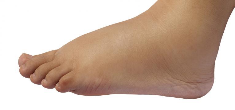 edema linfático e pés inchados
