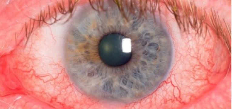 rosacea ocular