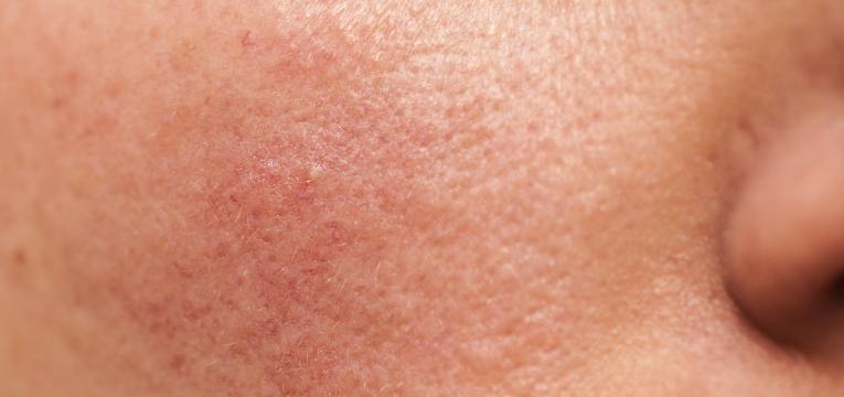 vermelhidao na pele