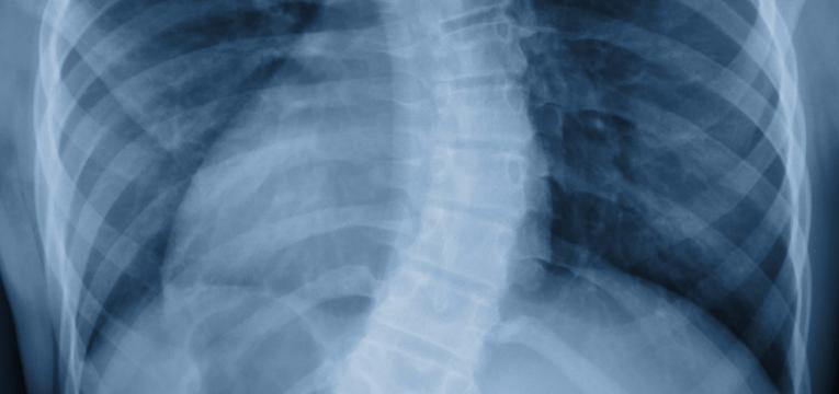 deformidade da coluna
