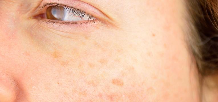 manchas de pigmentacao na pele