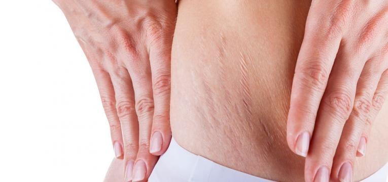 mesoterapia no tratamento de estrias