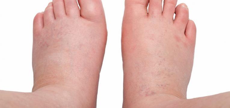 retencao de liquidos durante a gravidez e pes e tornozelos inchados