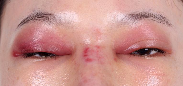 mulher com celulite facial