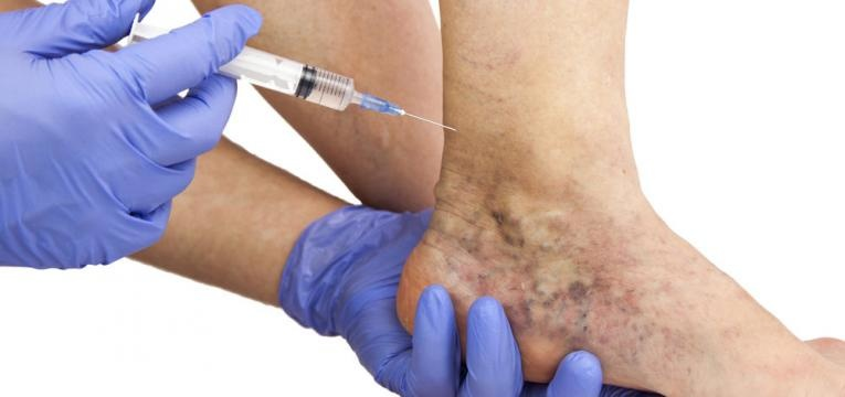 tratamento das varizes