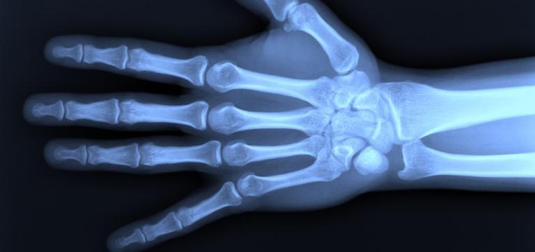 vitamina k e ossos saudaveis
