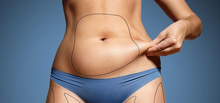 risco na lipoescultura do abdomen