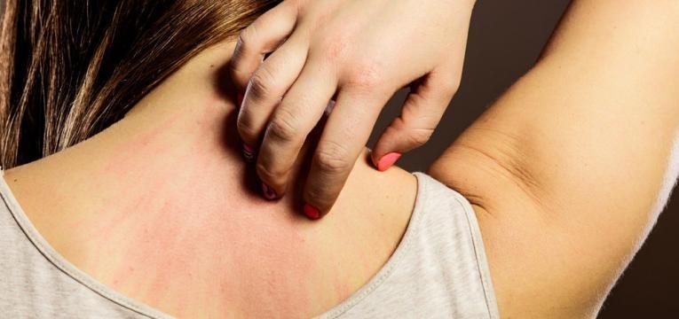 dermatite e comichao e vermelhidao