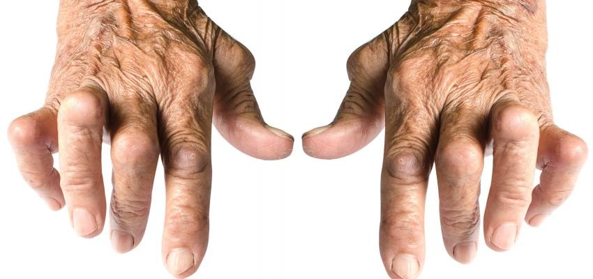 alivio dos sintomas da artrite reumatoide