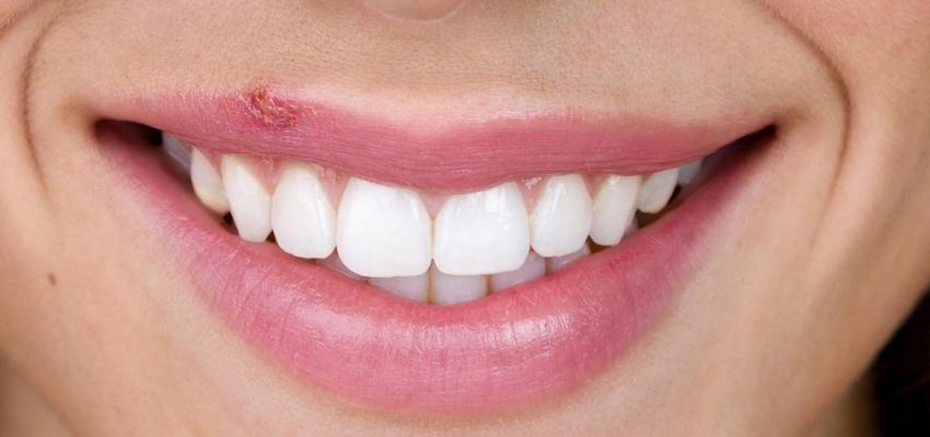 tratamento para o herpes labial e manifestacoes no labio