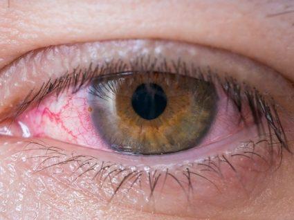 Inflamação da córnea: causas, sintomas e tratamento