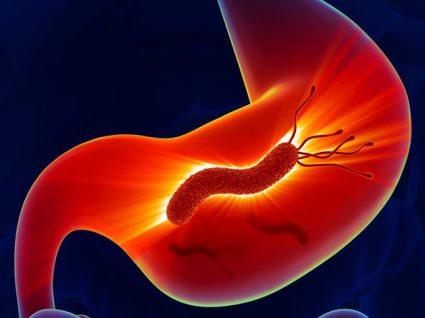 Infeção pelo Helicobacter pylori: sintomas, causas e tratamento