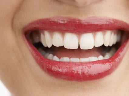 Diastema dentário: o que sabemos sobre ele