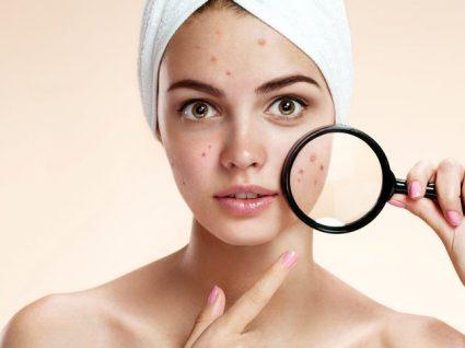 Isto é o que precisa saber e fazer para ver-se livre da acne (de vez)